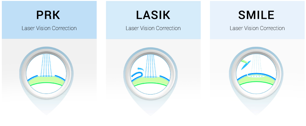 what was lasik visions competitive priority Lasik services laser vision correction – is a great way to see clearly again lasik lasik procedures  about us mid-michigan's clear choice in eye care  saginaw, midland, bay city and the surrounding communities is a highly competitive marketplace because of this competition, we know we have to be the best.