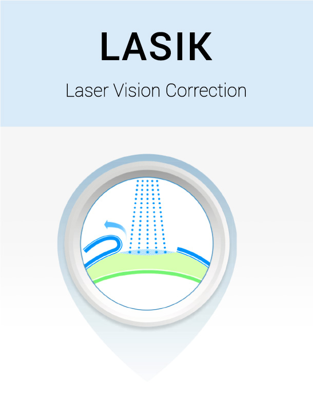 lasik vision correction 1 who would be a good candidate for lasik the decision to have laser vision correction depends on the results of a thorough consultation some basic requirements include a stable eyeglass prescription for one year, healthy cornea and thick enough corneas, no active eye disease and at least 21 years of age.