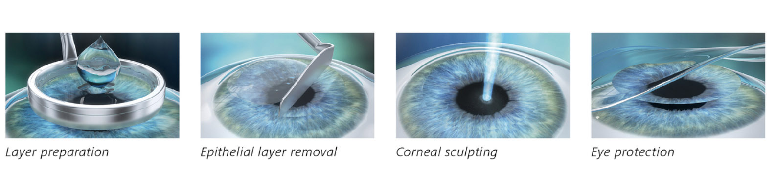 Laser Eye Surgery Procedures Eye Amp Laser Centre